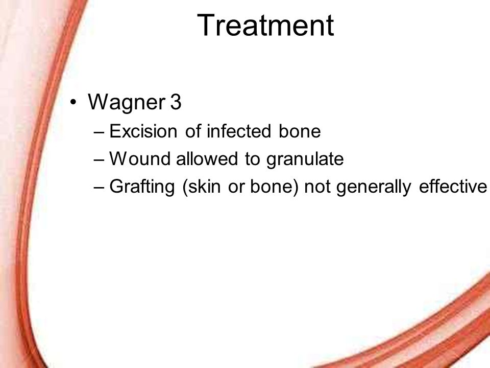 Treatment Wagner 3 Excision of infected bone