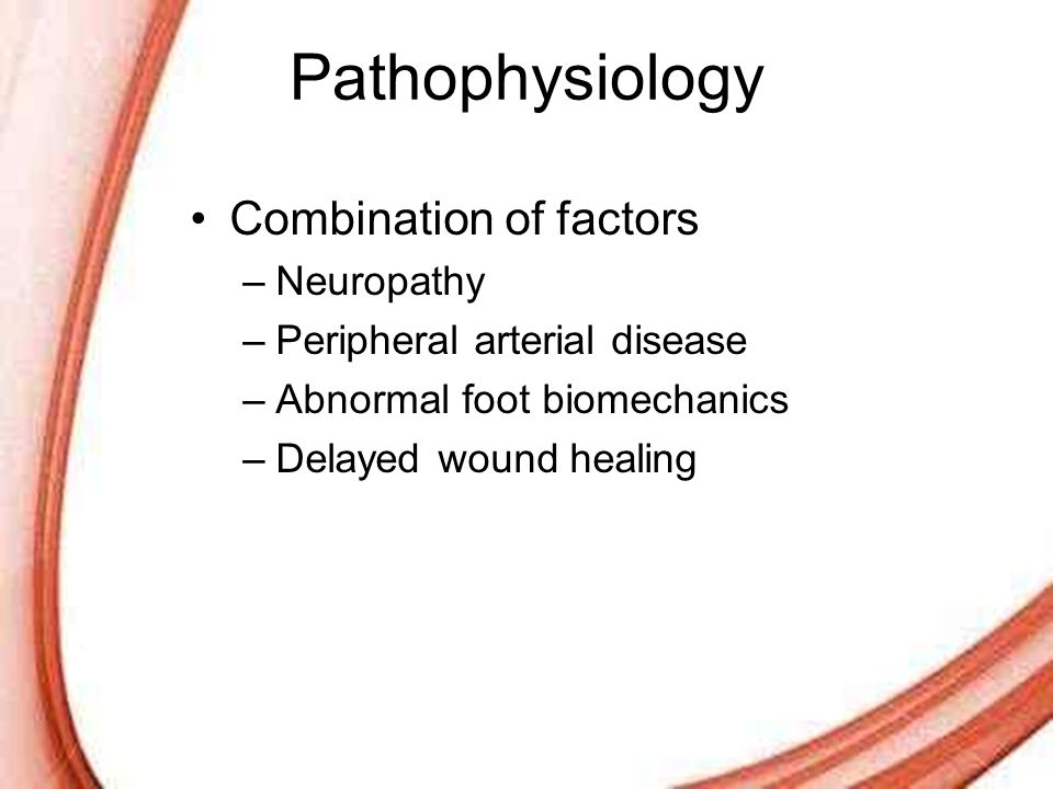 Pathophysiology Combination of factors Neuropathy