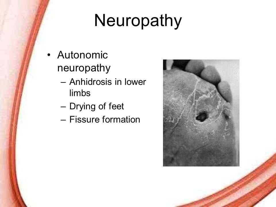 Neuropathy Autonomic neuropathy Anhidrosis in lower limbs
