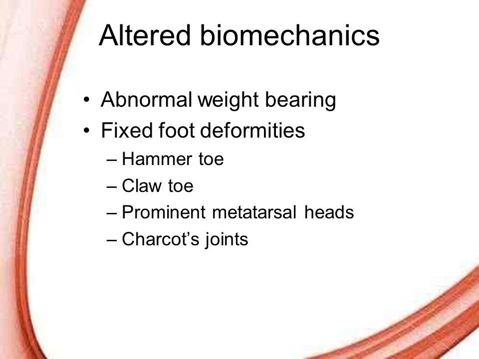 Altered biomechanics Abnormal weight bearing Fixed foot deformities