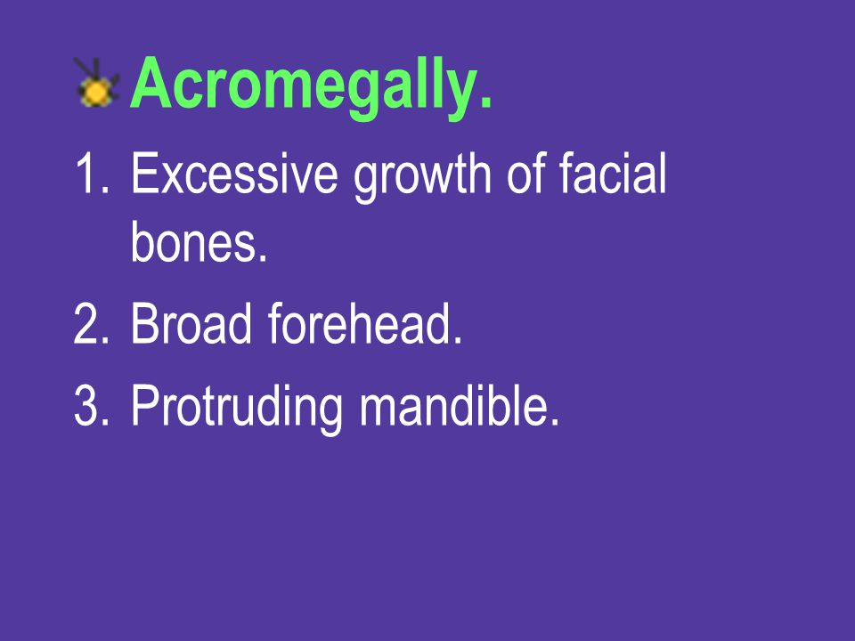 Acromegally. Excessive growth of facial bones. Broad forehead.