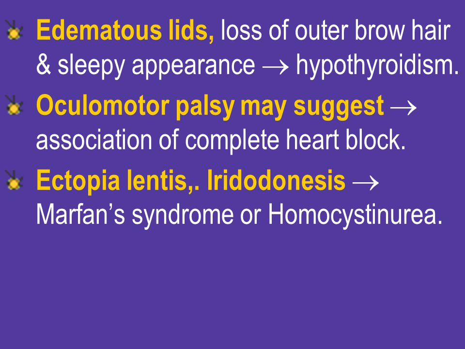 Edematous lids, loss of outer brow hair & sleepy appearance  hypothyroidism.