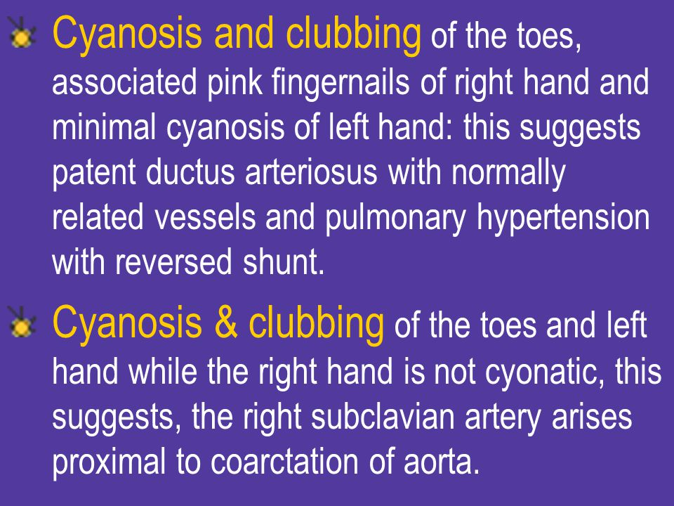 Cyanosis and clubbing of the toes, associated pink fingernails of right hand and minimal cyanosis of left hand: this suggests patent ductus arteriosus with normally related vessels and pulmonary hypertension with reversed shunt.