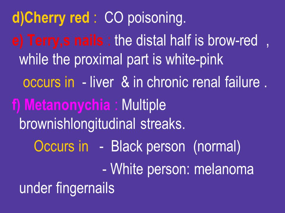 d)Cherry red : CO poisoning.