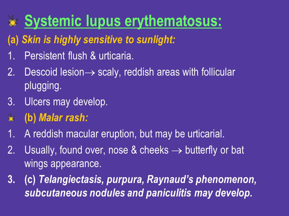 Systemic lupus erythematosus: