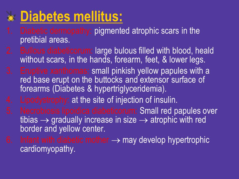 Diabetes mellitus: Diabetic dermopathy: pigmented atrophic scars in the pretibial areas.