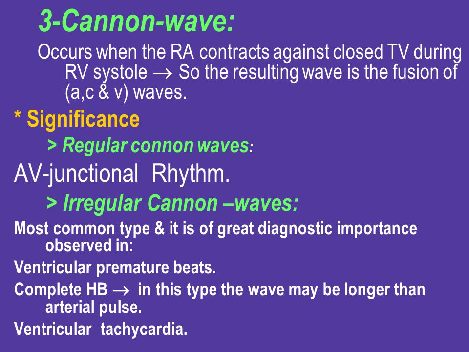 3-Cannon-wave: AV-junctional Rhythm. * Significance