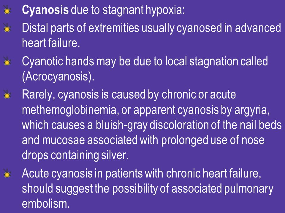 Cyanosis due to stagnant hypoxia: