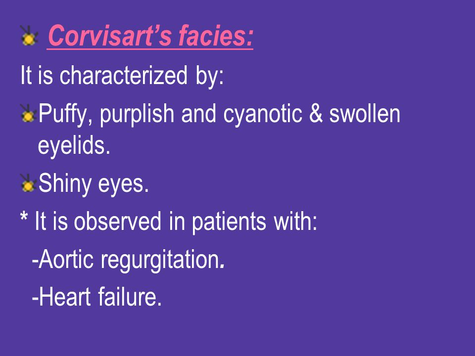 Corvisart's facies: It is characterized by: