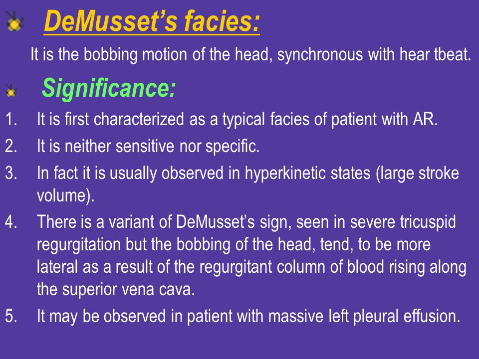 DeMusset's facies: It is the bobbing motion of the head, synchronous with hear tbeat. Significance: