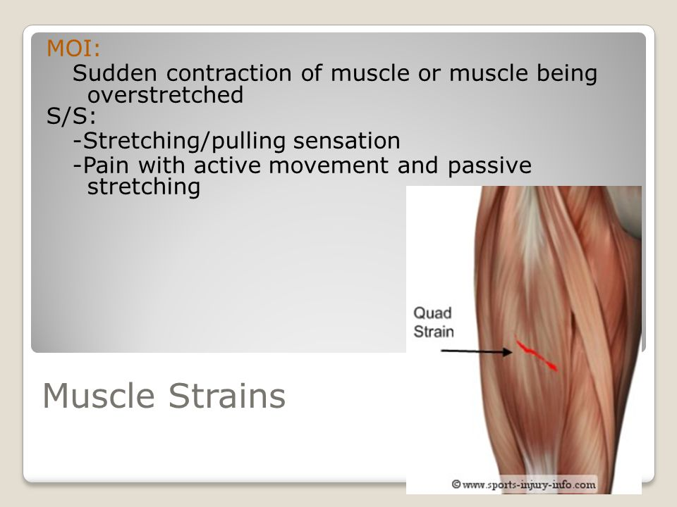 MOI: Sudden contraction of muscle or muscle being overstretched. S/S: -Stretching/pulling sensation.