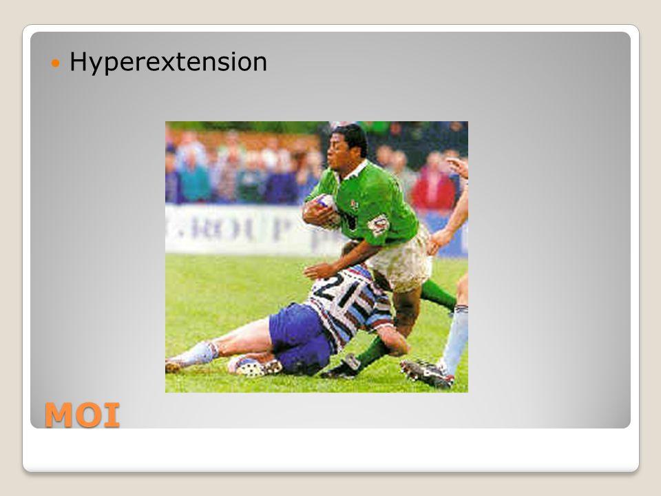 Hyperextension MOI