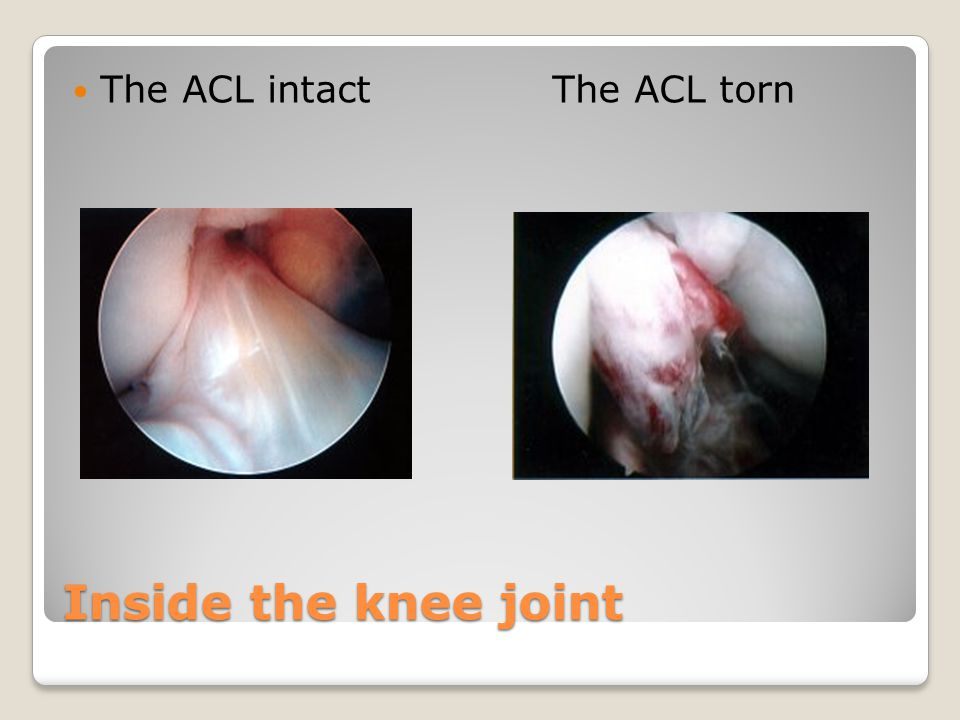 The ACL intact The ACL torn