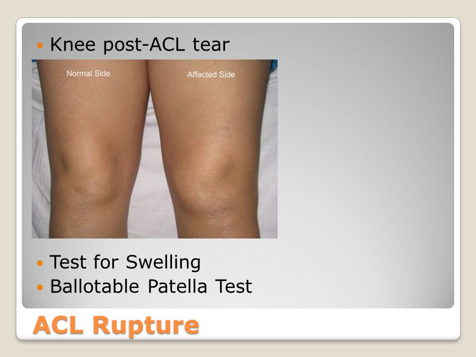ACL Rupture Knee post-ACL tear Test for Swelling
