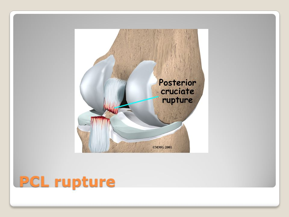 PCL rupture