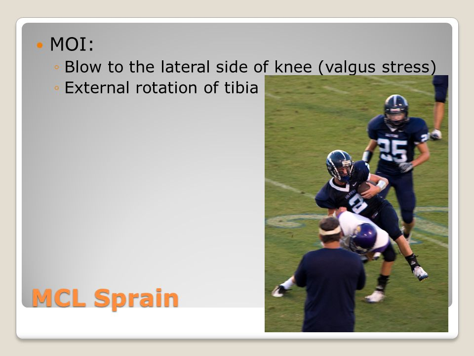 MCL Sprain MOI: Blow to the lateral side of knee (valgus stress)