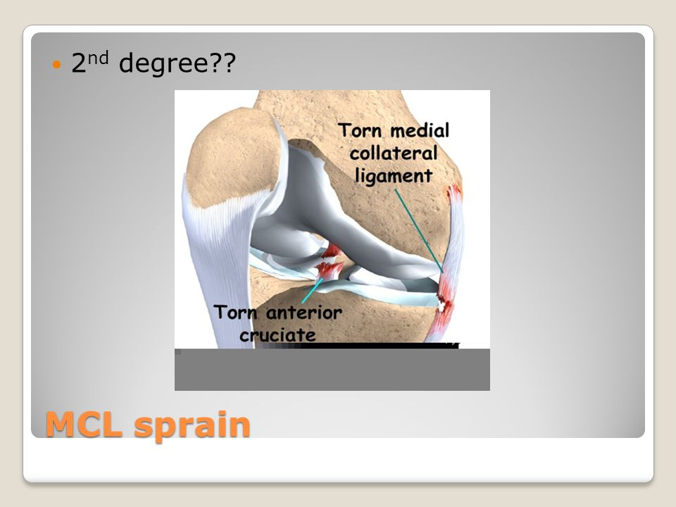 2nd degree MCL sprain