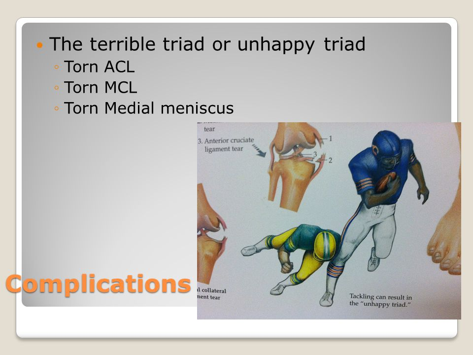 Complications The terrible triad or unhappy triad Torn ACL Torn MCL