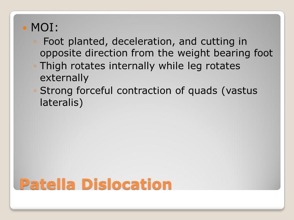 Patella Dislocation MOI: