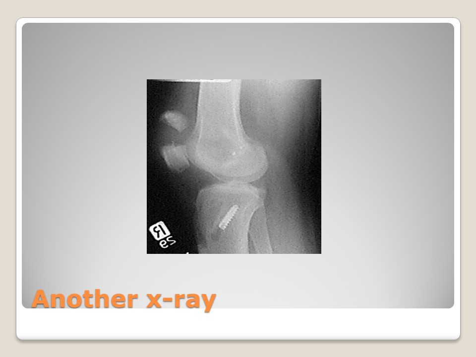 Another x-ray
