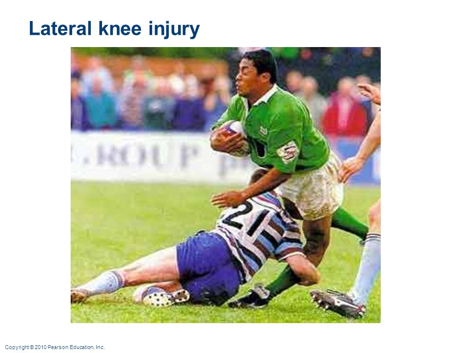 Lateral knee injury