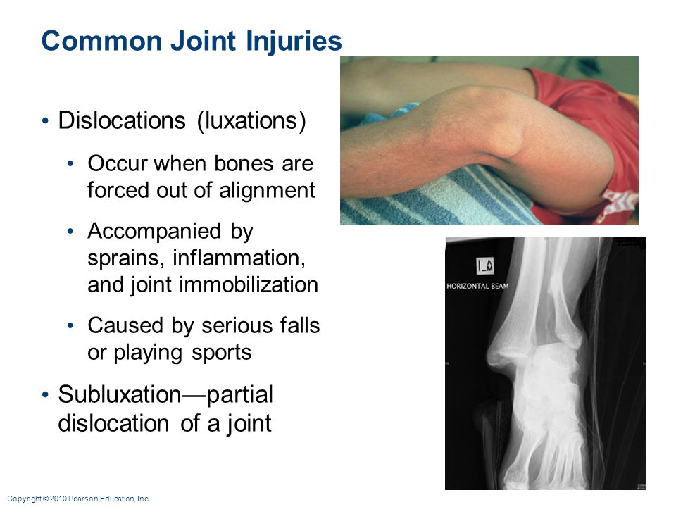 Common Joint Injuries Dislocations (luxations)