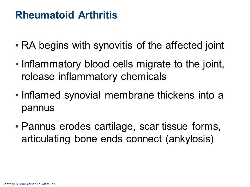Rheumatoid Arthritis RA begins with synovitis of the affected joint. Inflammatory blood cells migrate to the joint, release inflammatory chemicals.