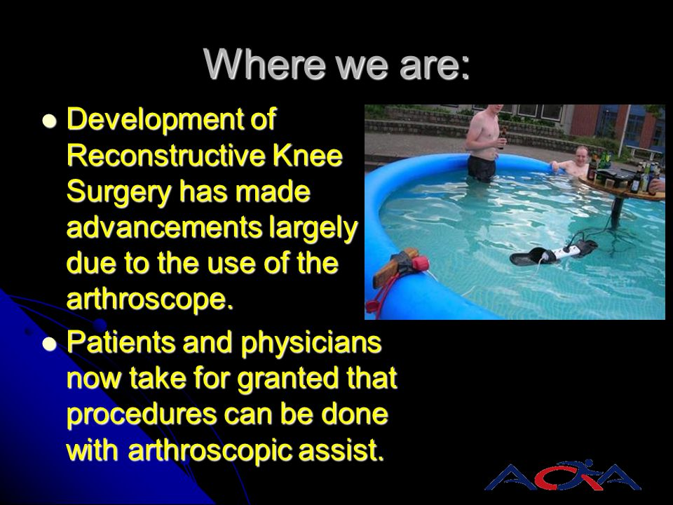 Where we are: Development of Reconstructive Knee Surgery has made advancements largely due to the use of the arthroscope.
