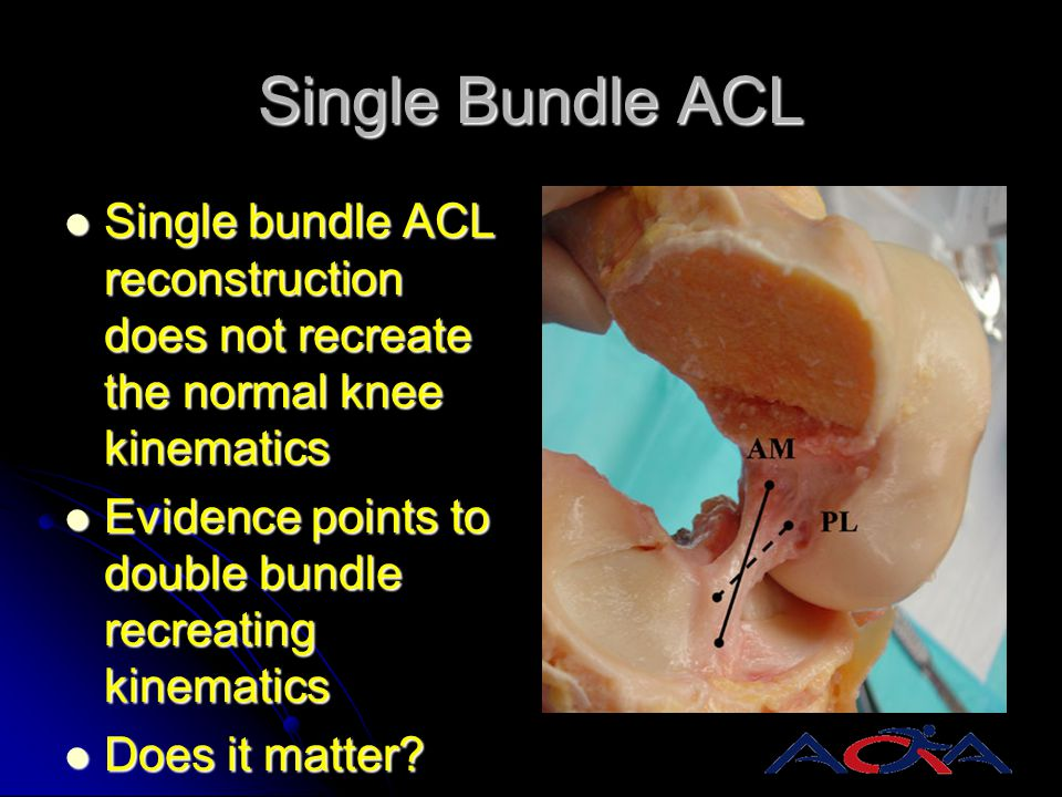 Single Bundle ACL Single bundle ACL reconstruction does not recreate the normal knee kinematics.