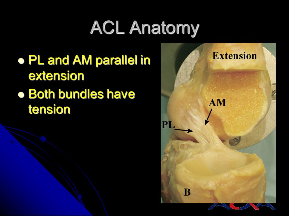 ACL Anatomy PL and AM parallel in extension Both bundles have tension