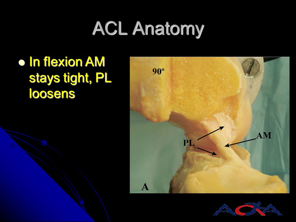 ACL Anatomy In flexion AM stays tight, PL loosens