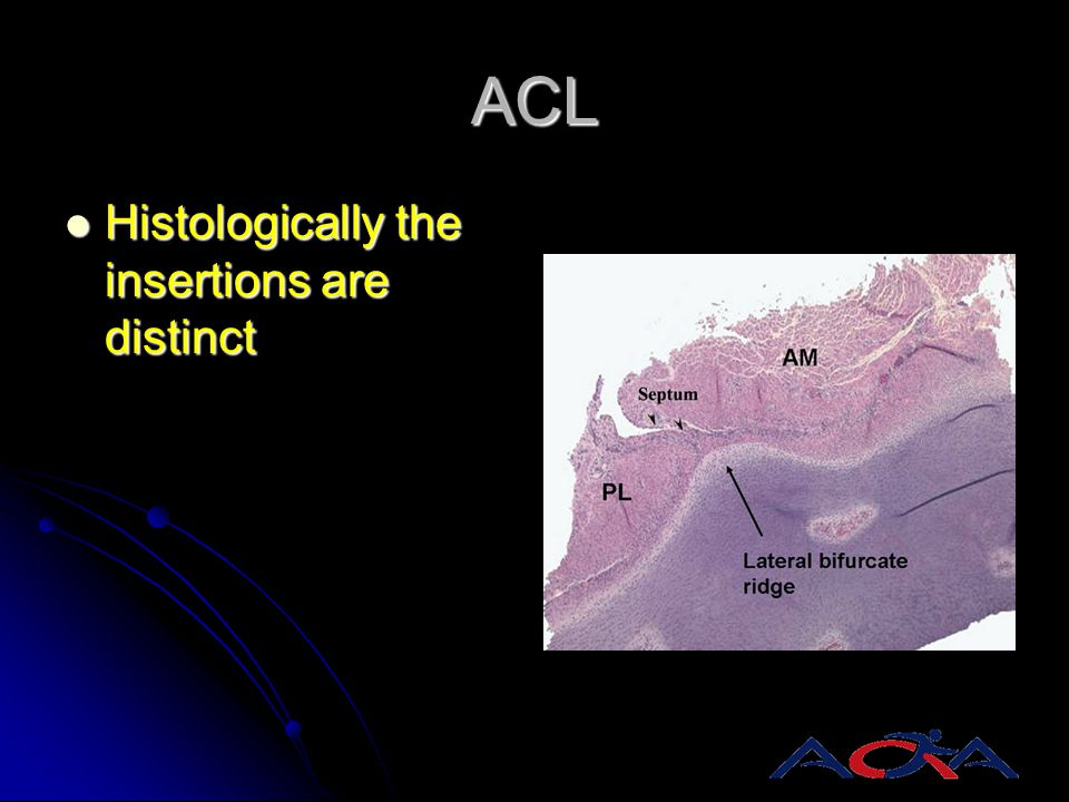 ACL Histologically the insertions are distinct