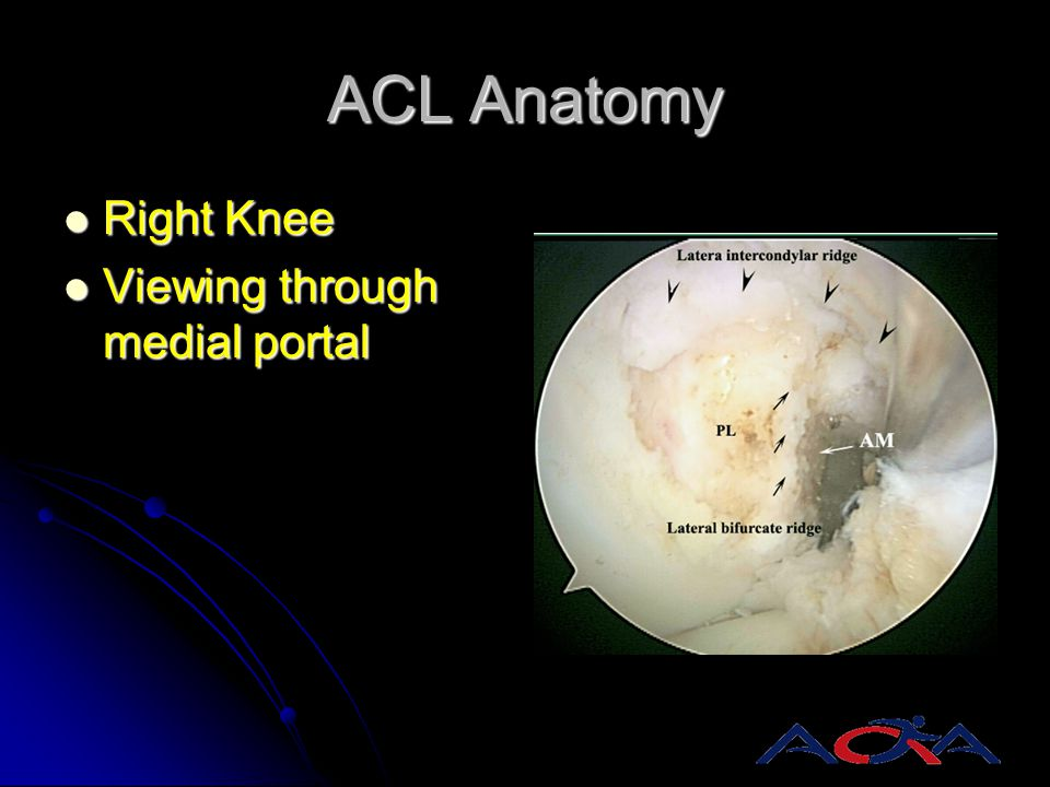 ACL Anatomy Right Knee Viewing through medial portal