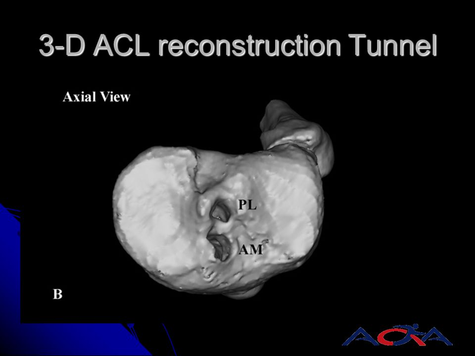 3-D ACL reconstruction Tunnel