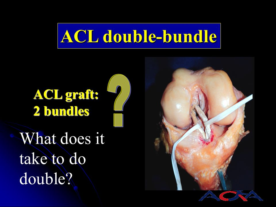 ACL double-bundle What does it take to do double ACL graft: