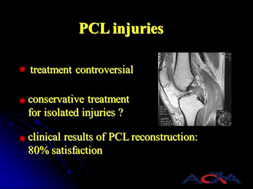 PCL injuries treatment controversial conservative treatment