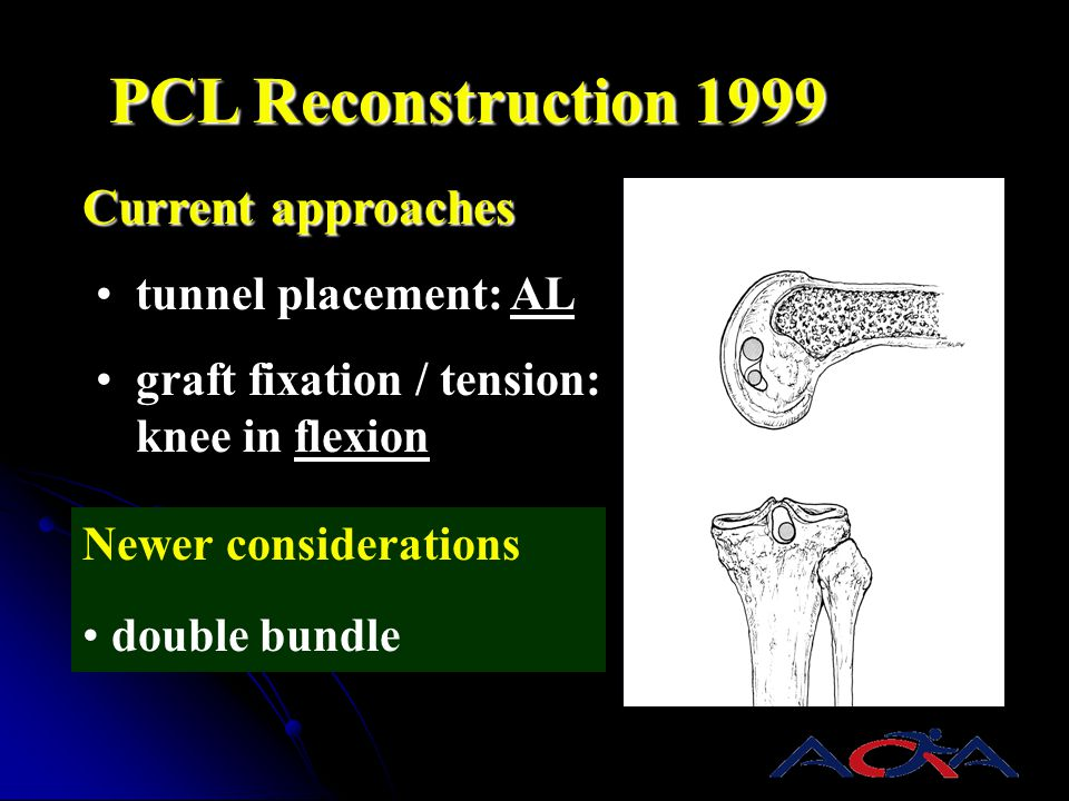 PCL Reconstruction 1999 Current approaches tunnel placement: AL