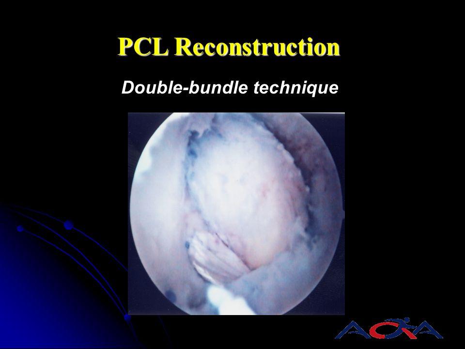 PCL Reconstruction Double-bundle technique AL PM