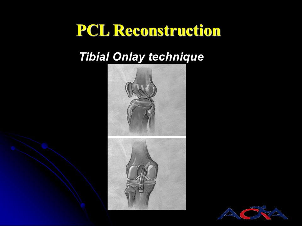 PCL Reconstruction Tibial Onlay technique