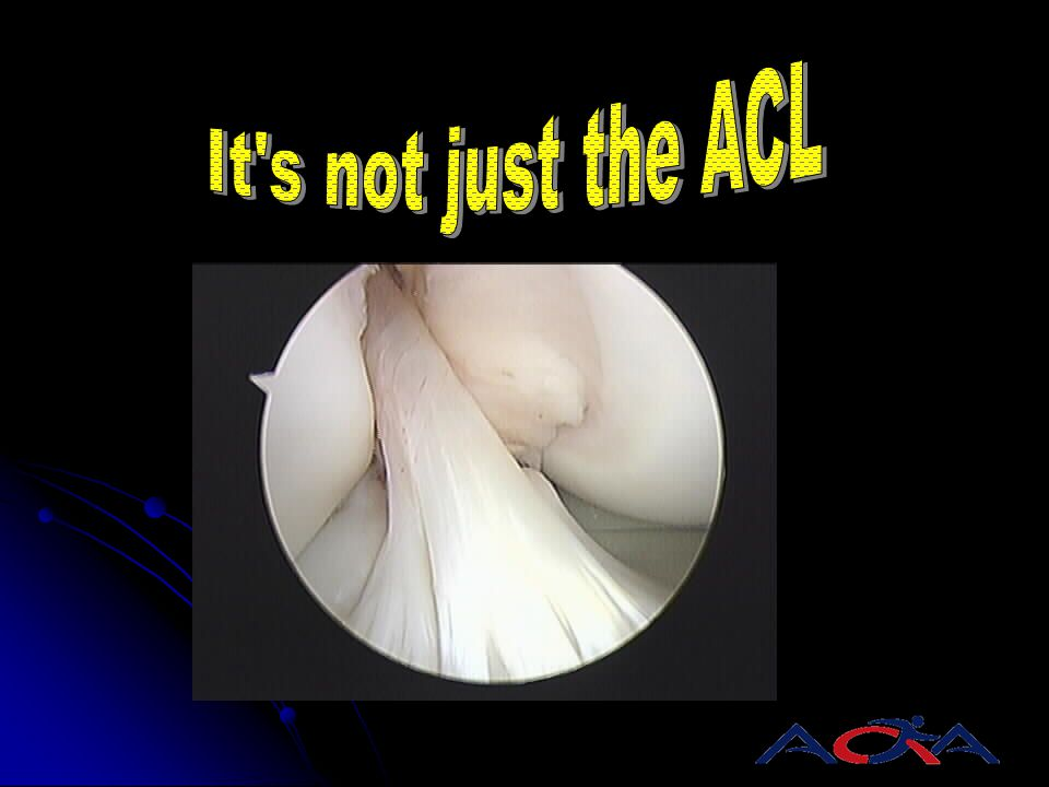 It s not just the ACL