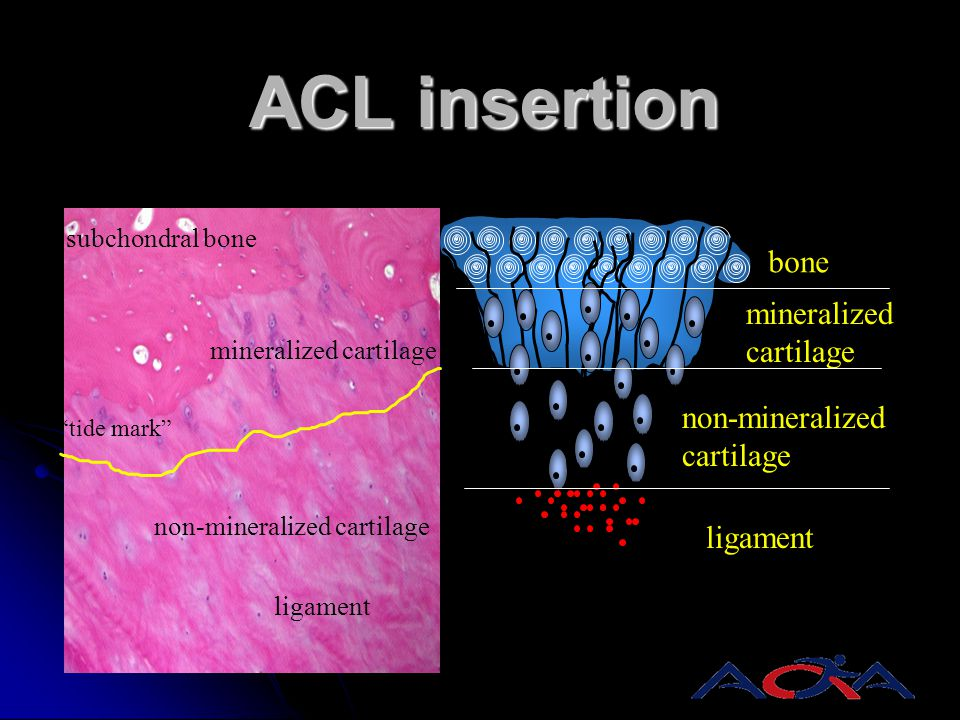 ACL insertion bone mineralized cartilage non-mineralized ligament