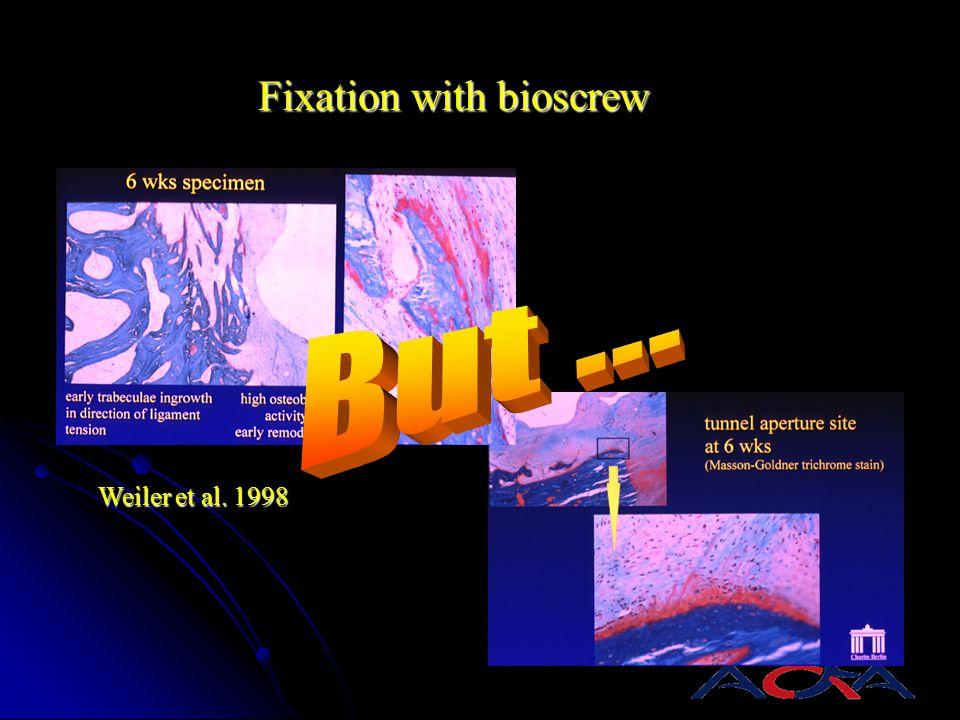 Fixation with bioscrew