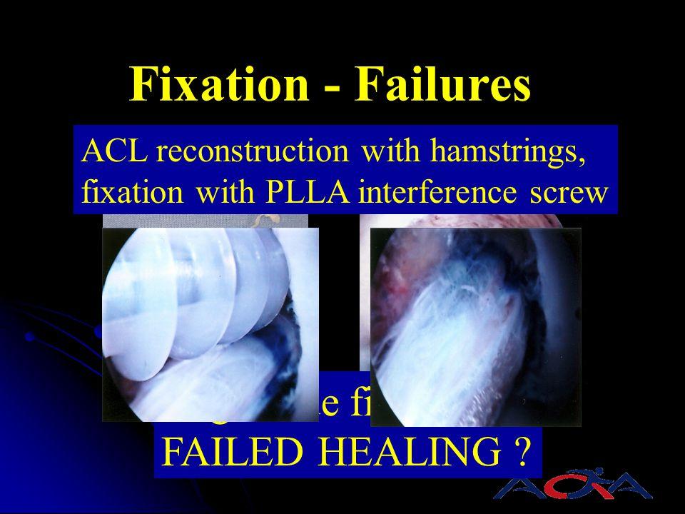 Fixation - Failures single side fixation FAILED HEALING