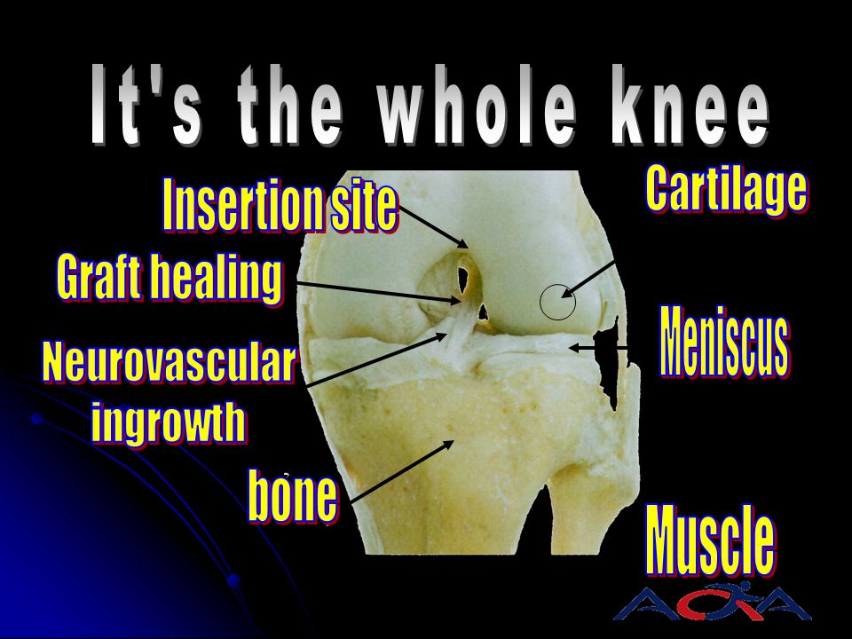 It s the whole knee Cartilage. Insertion site. Graft healing. Meniscus. Neurovascular. ingrowth.