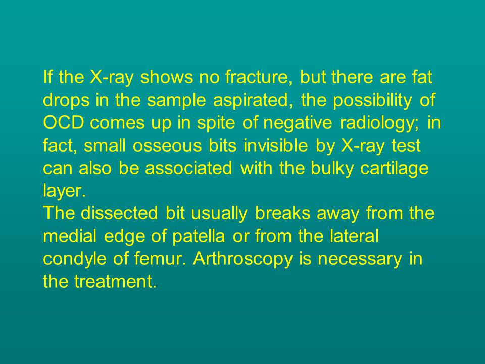 If the X-ray shows no fracture, but there are fat drops in the sample aspirated, the possibility of OCD comes up in spite of negative radiology; in fact, small osseous bits invisible by X-ray test can also be associated with the bulky cartilage layer.