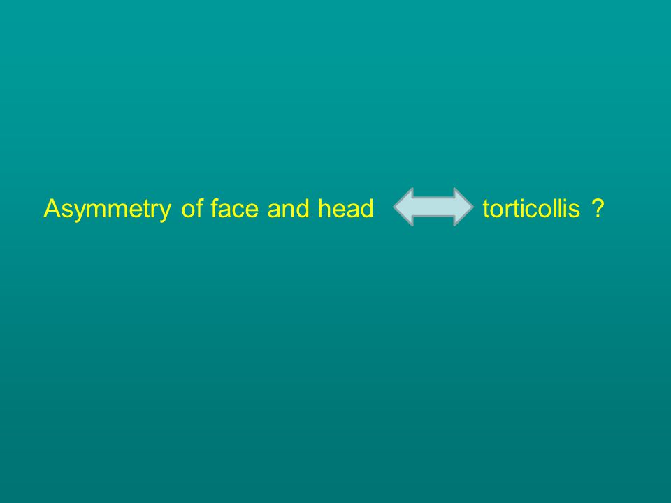 Asymmetry of face and head torticollis