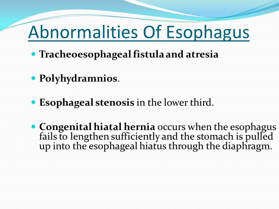 Abnormalities Of Esophagus