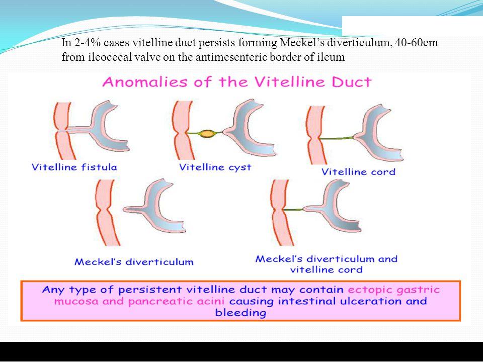 In 2-4% cases vitelline duct persists forming Meckel's diverticulum, 40-60cm