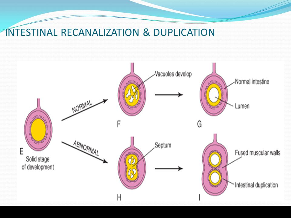 INTESTINAL RECANALIZATION & DUPLICATION