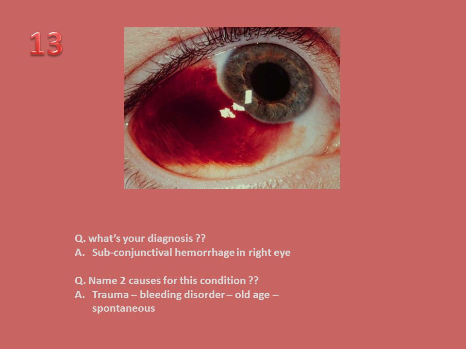 13 Q. what's your diagnosis